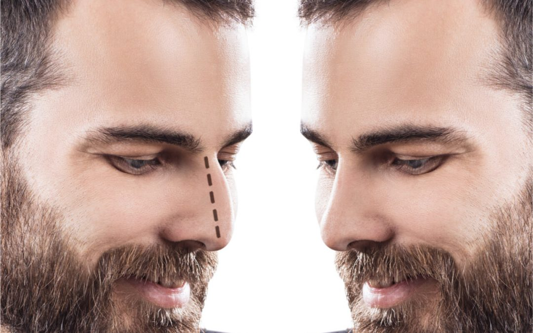 Male Rhinoplasty: What To Expect From It