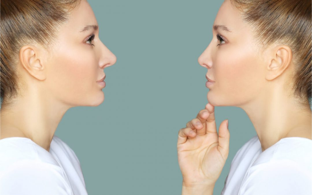 What Are The Results of A Nose Job Before And After?
